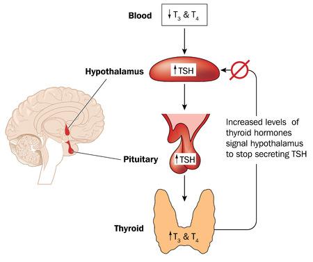 Thyroid Treatment Synthroid